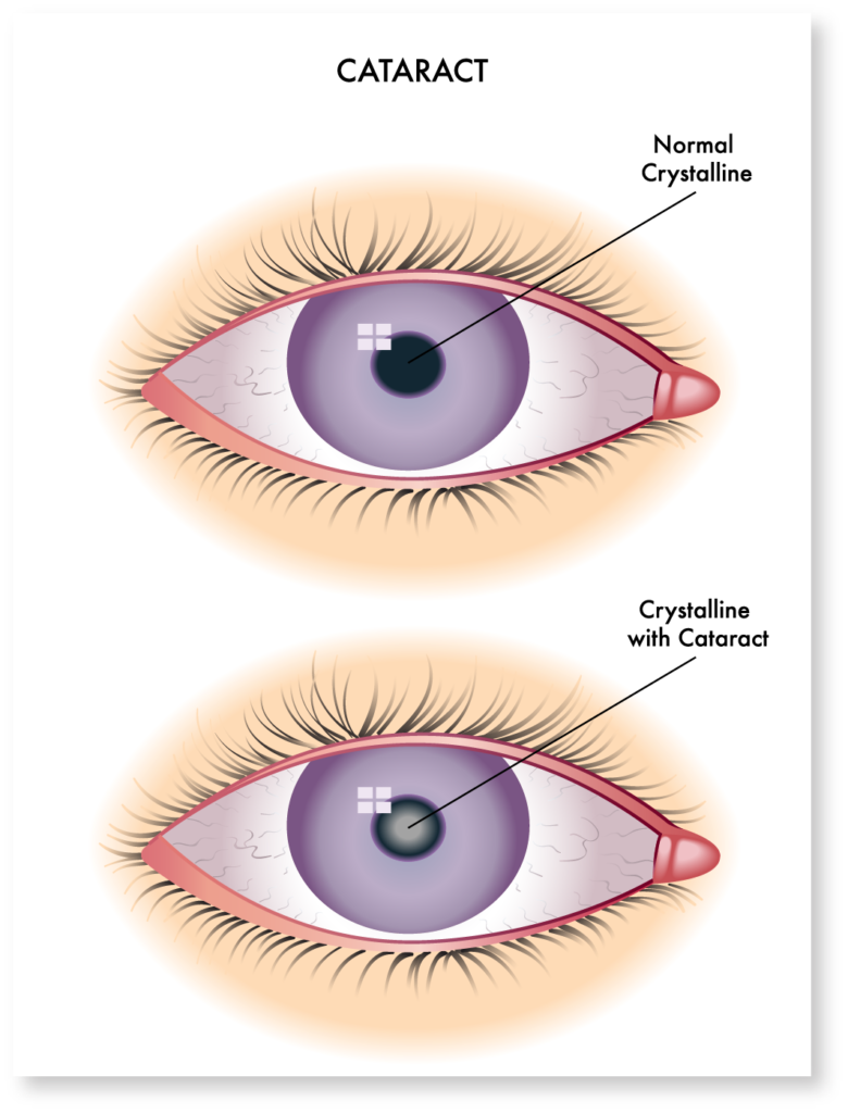 cataract-symptoms