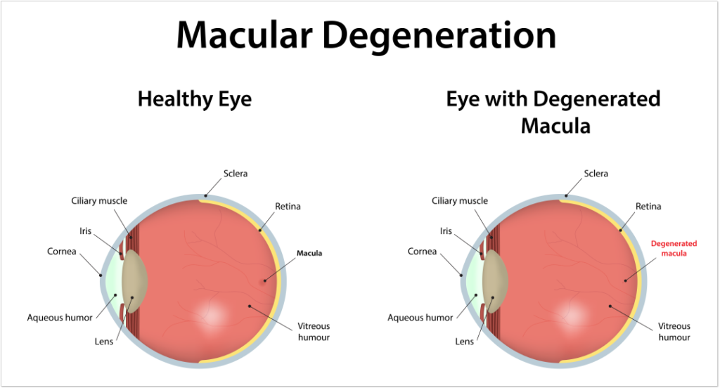Macular degeneration 1960 eye surgeons houston tx macular degeneration ccuart Gallery
